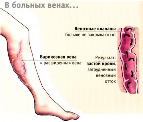 Судороги при варикозе