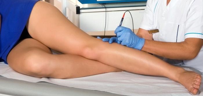 Прессотерапия при варикозе